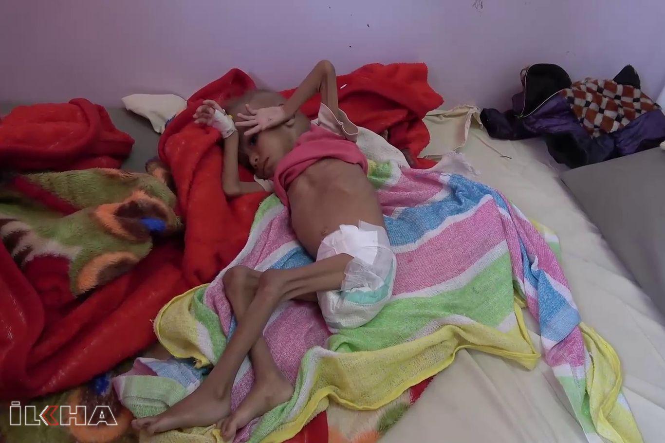 """UNICEF: """"Yardımların azalması nedeniyle milyonlarca Yemenli çocuk açlıkla karşı karşıya"""""""
