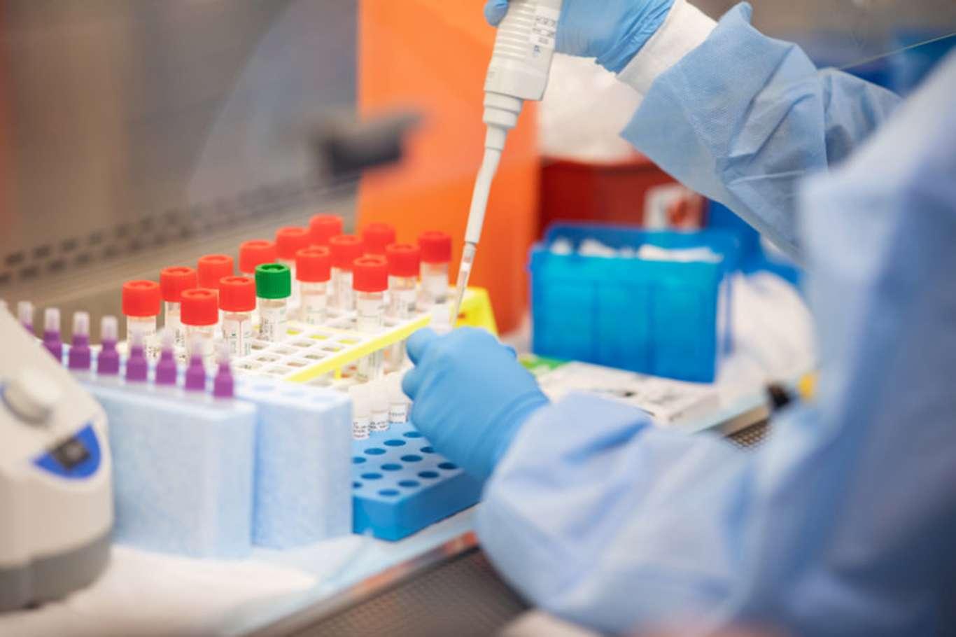 Türkiyede Covid-19 hastalığından şifa bulan kişi sayısı 300 bini aştı